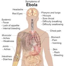 Ebola's Very Contagious. Ebola's Also Hard To Catch. Confused? Here's How To Understand.
